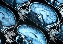 """Badanie mózgu wykaże, czy jesteś """"rasistą"""""""